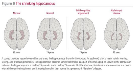 Share International December 2017 images, The shrinking hippocampus